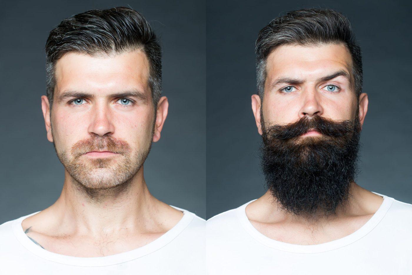 een succesvolle baard groeien en baardgroei versnellen - trendheads